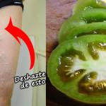 Cómo Curar Las Venas Varicosas Con La Ayuda Del Tomate